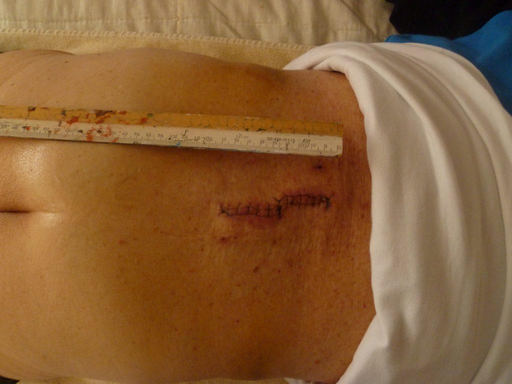 Ergebnis Tag 11 nach Spinalkanalstenose-OP (Wirbelsäulen-Operation), noch vor Behandlung der Narbenentwicklung nach Spinalkanalstenose-OP mit dem Matrixmobil (MaRhyThe®)
