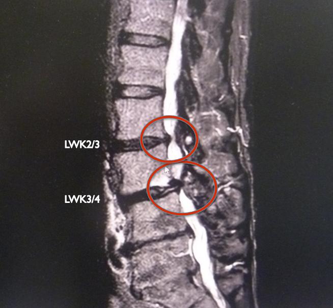 MRT der Wirbelsäule mit 2 Stenosen, die eine Rückenwirbel-OP nötig machen. Starke Schmerzen und Paresen erfordern kurzfristig eine Wirbelsäulen-OP, Reha nach spinalkanalstenose dringend nötig.