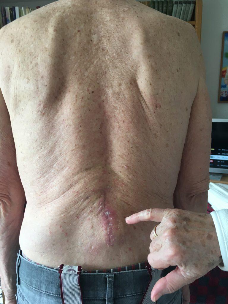 Ergebnis nach 2 x 1 Stunde Behandlung der Narbenentwicklung nach Spinalkanalstenose-OP mit dem Matrixmobil (MaRhyThe®)