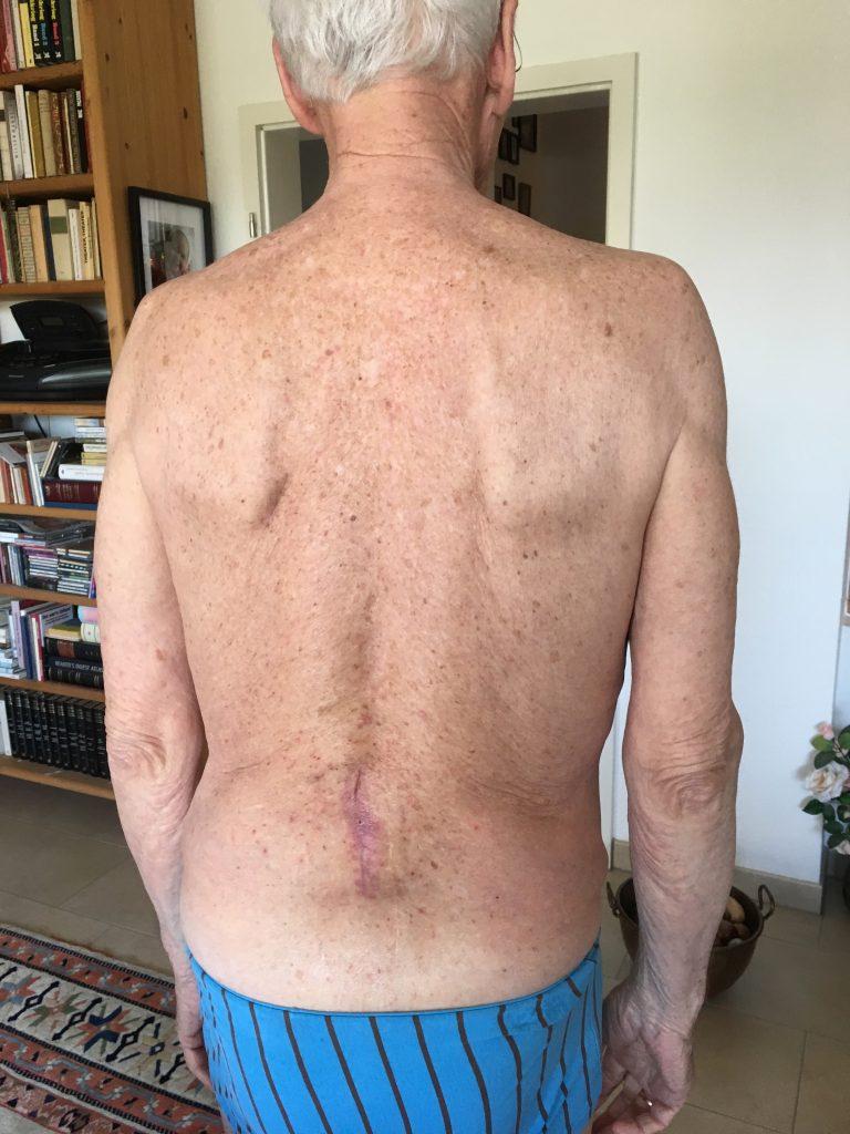 Ergebnis nach 4 x 1 Stunde Behandlung der Narbenentwicklung nach Spinalkanalstenose-OP mit dem Matrixmobil (MaRhyThe®)