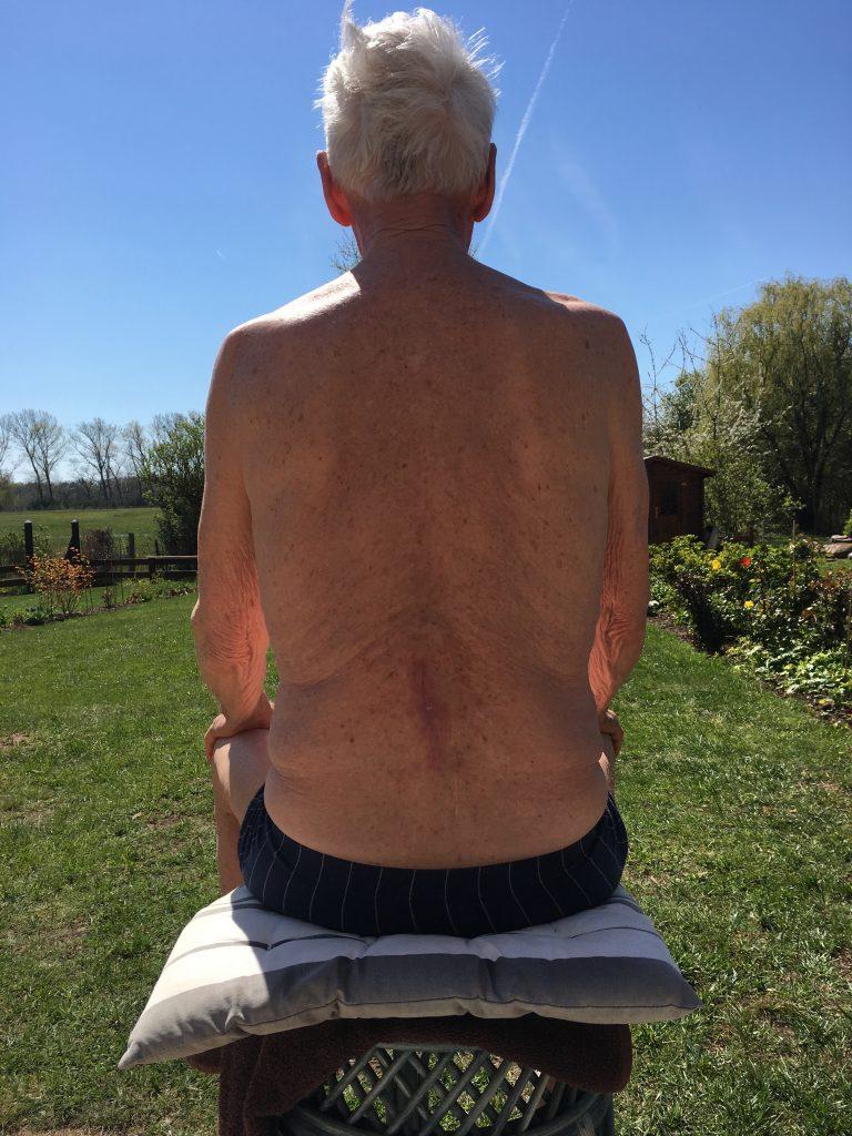 Ergebnis nach 9 x 1 Stunde Behandlung der Narbenentwicklung nach Spinalkanalstenose-OP mit dem Matrixmobil (MaRhyThe®)