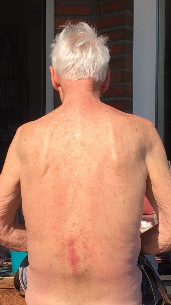 Ergebnis nach 7 x 1 Stunde Behandlung der Narbenentwicklung nach Spinalkanalstenose-OP mit dem Matrixmobil (MaRhyThe® nach Wirbelsäulen-OP)